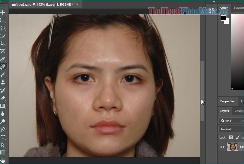 Gương mặt của nhân vật đã hết mụn
