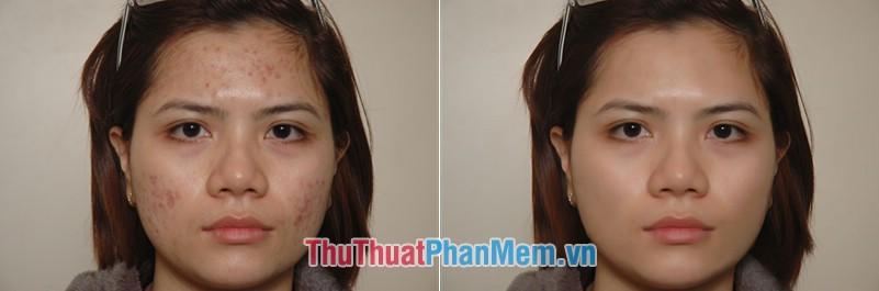 So sánh ảnh trước và sau khi chỉnh sửa